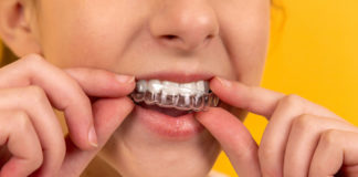 Straighten-Your-Teeth-The-Fastest-Way-to-Do-This-on-passionarticles