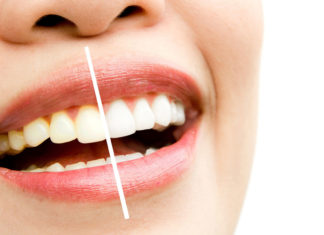 Best-Ways-to-Make-White-of-Your-Yellow-Teeth-Easily-on-passionarticles